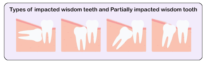 Familiarity with different parts of dental implants - wisdom teeth