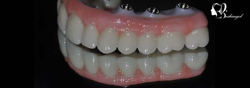 Can both types of implants be used to replace all teeth?